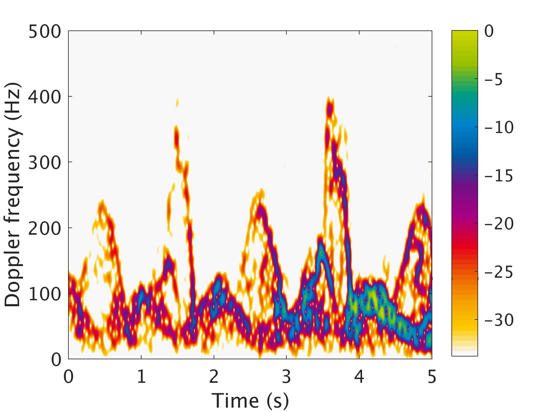Radar Signal Processing for Medical Gait Analysis – Signal